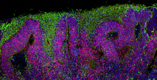 Unlocking Nature's Secrets for Building the Human Brain